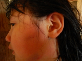 顔の傷.JPG